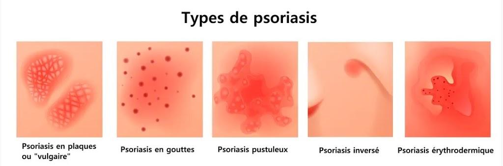 Les différents types de psoriasis
